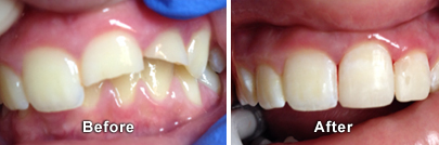 Before and After Broken Tooth Repair